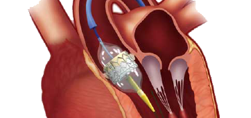 TAVR---Art-Optimised