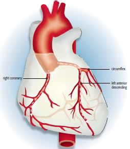 HEART (PCI Brochure)