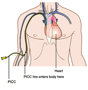 an essay on health care and the peripherally inserted central catheter picc Proforma –competency template- v 2 /djk form ac2 name competency statement: care and management of peripherally inserted central catheters (picc.