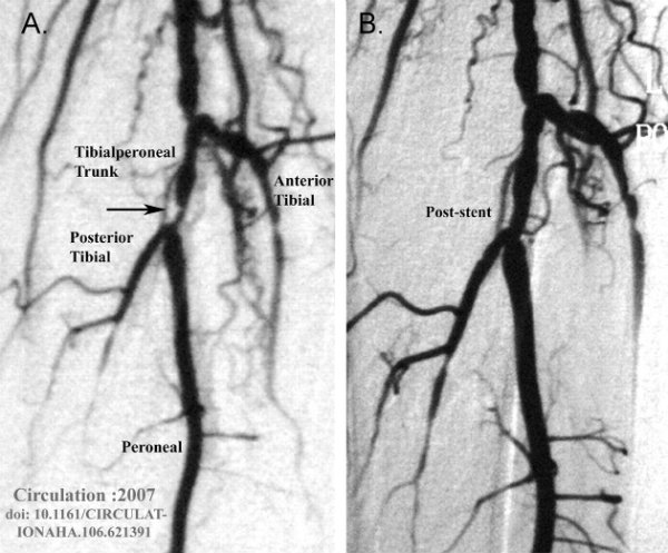 Angiogram showi...
