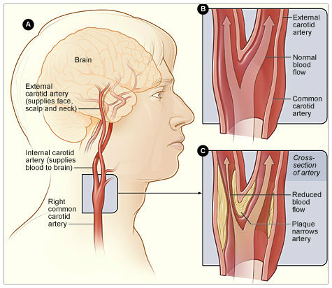 carotid-anatomy(copy)(copy)